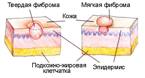 Фиброма подкожной жировой клетчатки