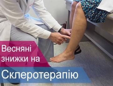 scleroterapiya